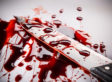 A bloody knife.