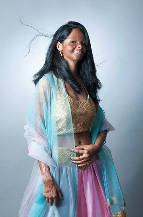 """""""shoot for beauty"""" is a photoshoot to raise awareness about acid attacks"""
